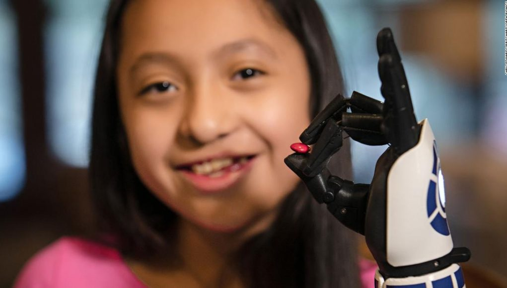 An 11-year-old Star Wars fan got a R2-D2 bionic arm. Mark Hamill called her a hero